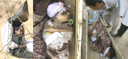 Dead Iraqi Baby