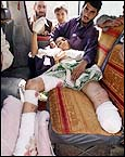 16 yr old, Assaduleh, one of the first civilians hit by a U.S. missile
